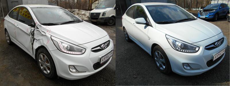 Hyundai Solaris до и после ремонта в кузовном цехе Алмас